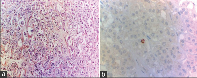 Figure 3: (a) The hyaline material of the tumor is Congo red negative (×100), (b) IHC Ki-67 stain - focal nuclear positivity (×400)